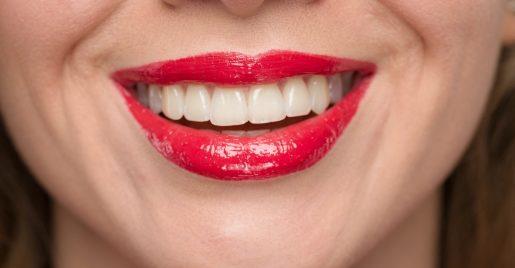 歯,歯並び,笑顔